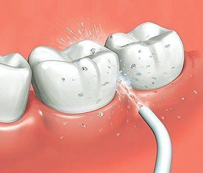 ניקוי בסילון לניקוי שיניים פנסוניק PANASONIC EW1211W